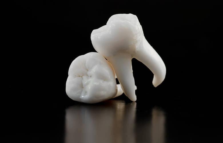 Το πρώτο πλήρες νεολιθικό γονιδίωμα στη Μεσόγειο από δόντι νεολιθικής γυναίκας
