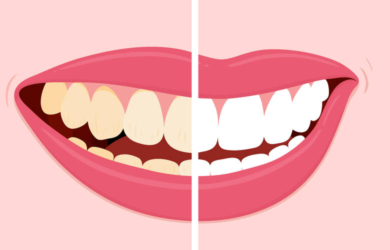 χρωματισμός δοντιών