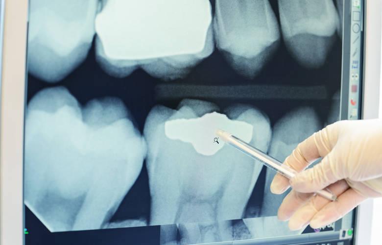 οδοντιατρική ακτινογραφία