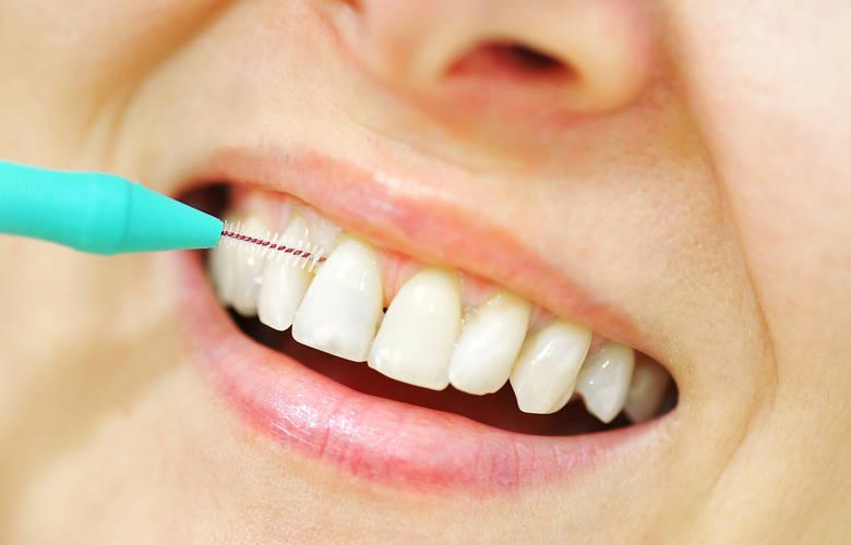 Γυναίκα καθαρίζει τα δόντια της με μεσοδόντιο βουρτσάκι