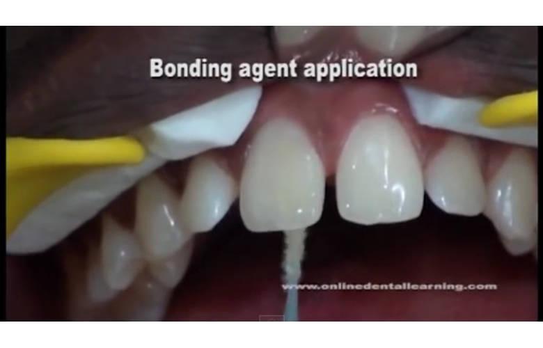 Κλείσιμο διαστήματος σε δόντια της άνω γνάθου