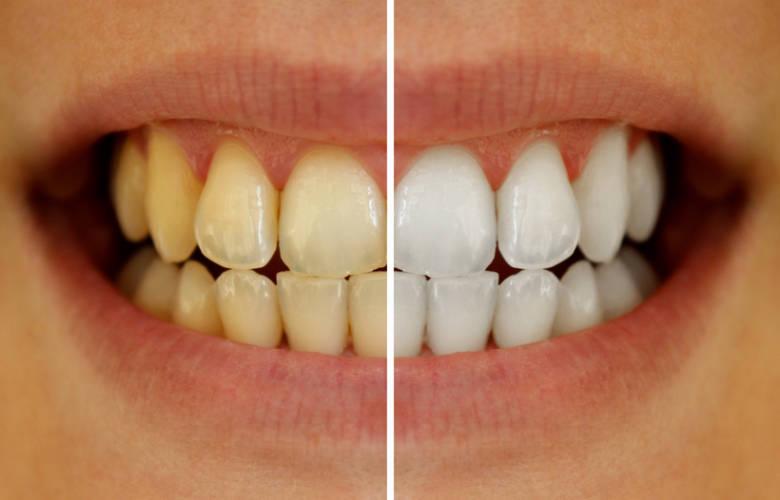 κίτρινα δόντια