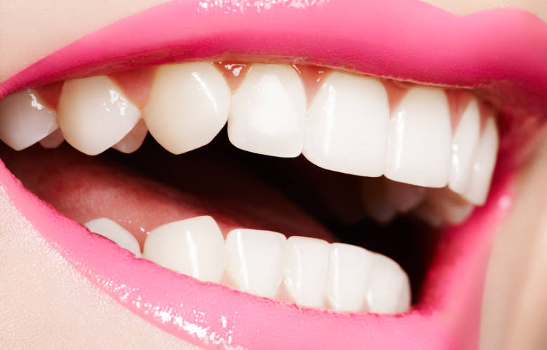 λευκά δόντια