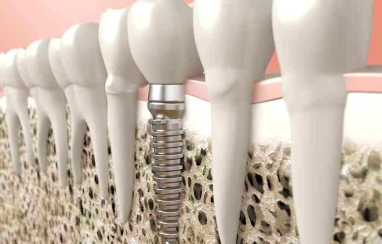 Οδοντικά εμφυτεύματα: Κατασκευή και οστεοεσωμάτωση