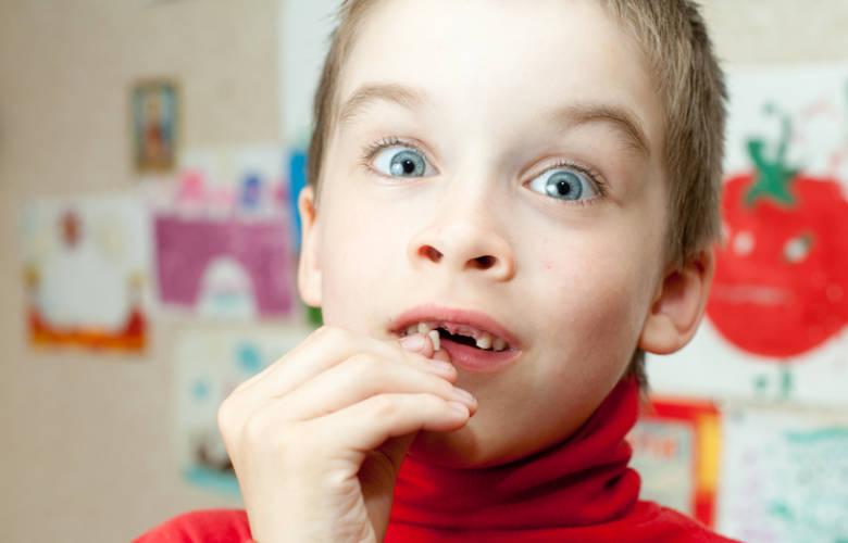 Δόντι που κουνιέται