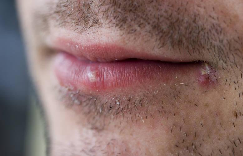 Επιχείλιος έρπης: Αιτίες, συμπτώματα και επούλωση | Dental Alert ...