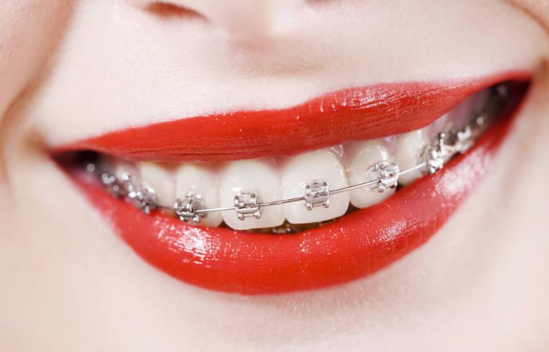 Έτσι ισιώνουν τα δόντια με τα σιδεράκια (vid)