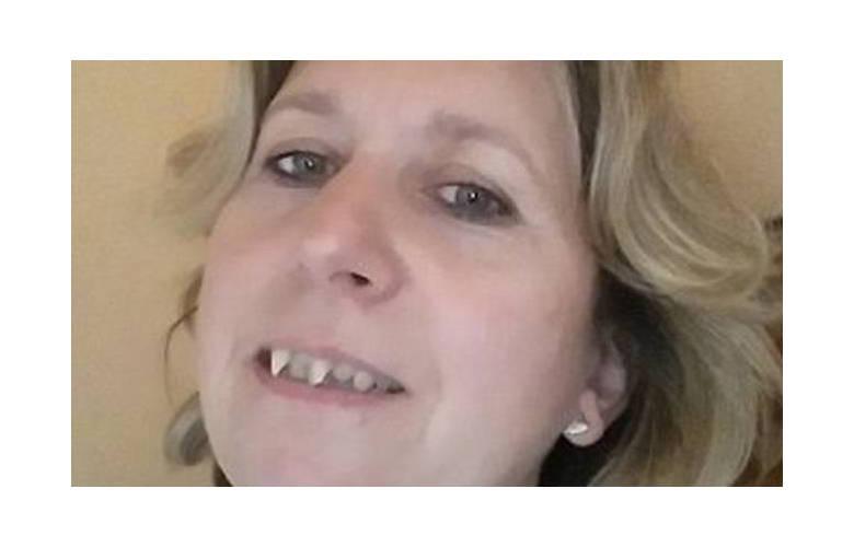 Μετατόπιση δοντιών λόγω περιοδοντίτιδας