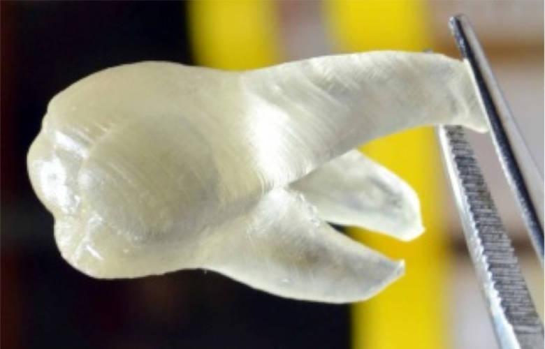 Στο μέλλον θα αντικαθιστώνται τα χαμένα δόντια με υγιεί 3D δόντια!