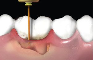 laser και περιοδοντίτιδα - dentalalert.gr