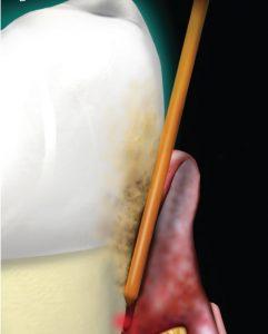 laser στην περιοδοντίτιδα - dentalalert.gr