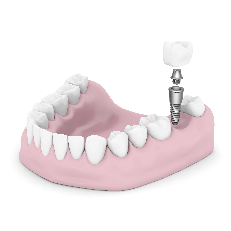 Οδοντικό Εμφύτευμα - Dentalalert.gr