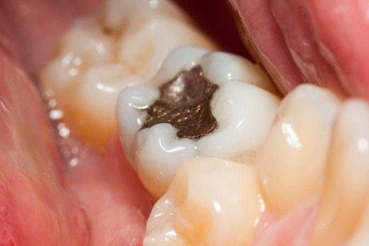 Η Ευρώπη ψηφίζει για την κατάργηση του υδραργύρου στα οδοντιατρικά αμαλγάματα!