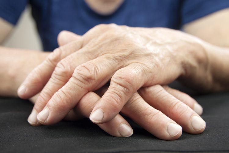 Περιοδοντικό παθογόνο μπορεί να προκαλέσει ρευματοειδή αρθρίτιδα