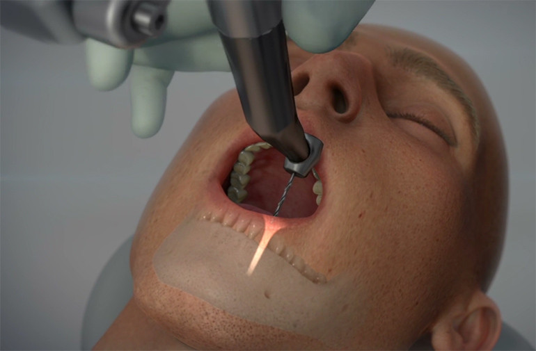 Ρομποτικό σύστημα καθοδήγησης αλλάζει την εμφυτευματική οδοντιατρική!