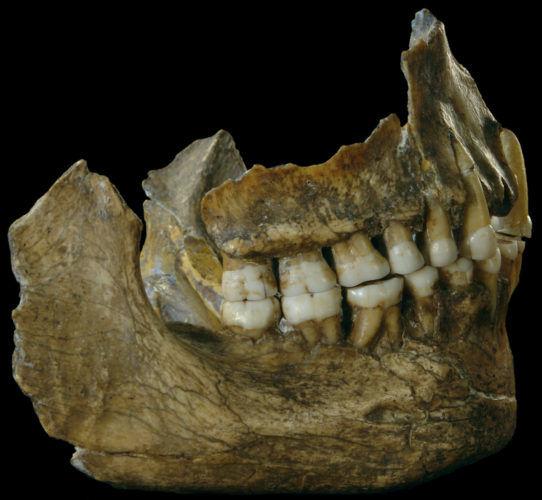 Προϊστορική Ασπιρίνη βρέθηκε στα δόντια Νεάντερταλ!