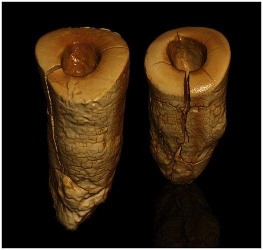 Πρώιμα σφραγίσματα βρέθηκαν σε σκελετό 13.000 ετών!