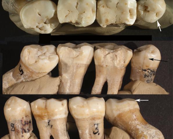 Η οδοντιατρική στην εποχή των Νεάτερνταλ!
