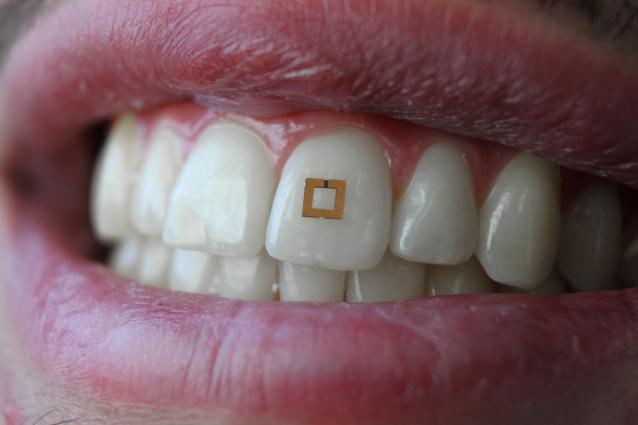 Επιστήμονες αναπτύσσουν μικροσκοπικούς αισθητήρες για τα δόντια που εντοπίζουν ό,τι τρώμε!